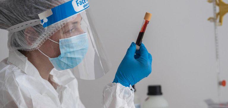 Estudo monstra que tipo sanguíneo e genes estão ligados à covid-19