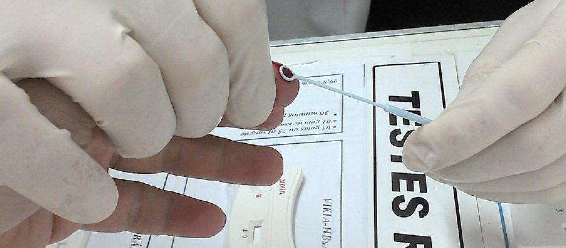 Todas as unidades de Saúde de Joaçaba e o Centro de Testagem e Aconselhamento-CTA realizam os testes rápidos/Foto: Assessoria de Imprensa